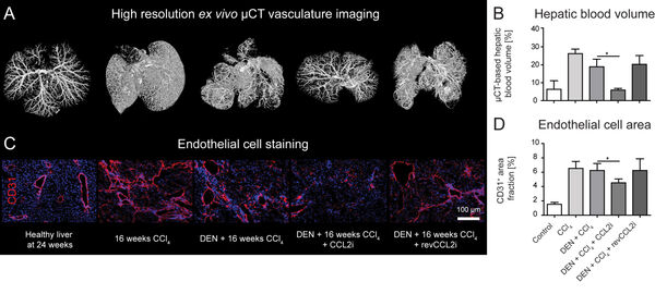 Figure 10: Studies employing nucleic acid-based (DNA aptamer) to inhibit monocyte infiltration into the liver. (A) High-resolution ex vivo μ-CT imaging (after perfusion with Microfil, a lead-containing radiopaque contrast agent) enables a detailed 3D examination of the vascular microarchitecture. (B) Quantification of the hepatic blood volume. (C) Staining of the liver sinusoidal endothelial cells in the liver and (D) quantification of the area covered by endothelial cells. Published own study.9